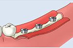 大口式(OAM)インプラントの手術手順のイメージ5