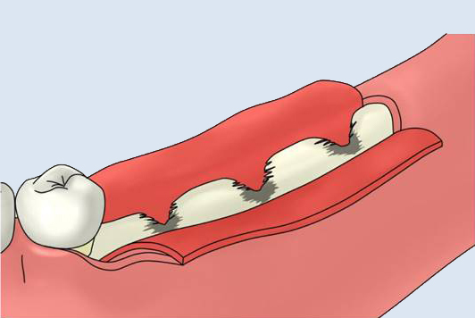 大口式(OAM)インプラントの手術手順のイメージ7