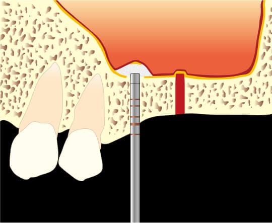 骨高が低い難症例 上顎の奥歯への対応法図1
