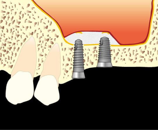 骨高が低い難症例 上顎の奥歯への対応法図2