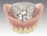 総入れ歯(金属床)イメージ