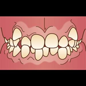 orthodontics033